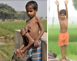 people born with both male and female genitalia pictures. Indian Boy Who Was Born With Extra Limbs On His Chest And People Both Male Female Genitalia Pictures
