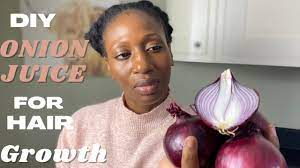onion juice is good for hair growth