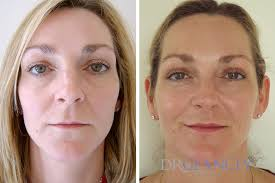permalip lip implants dr glancey clinics