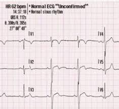 Electrocardiogram Internet Stroke Center