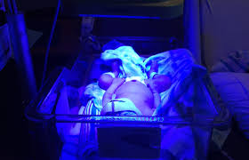 Baby Jaundice Light Baby Friendly Jaundice Treatment Tips Mother Rising