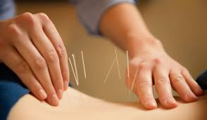 Image result for acupuncture and colitis