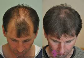 Male Pattern Baldness Cure