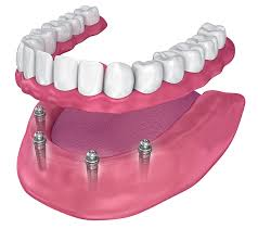 All-on-4 Dental Implants, Implant Supported Dentures in Chandler AZ