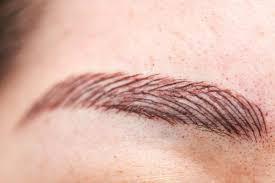 Odstranění Permanentního Makeupu Petra Clinic