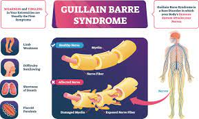 Rare neurological disorder, Guillain ...