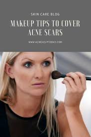 The 25+ best Acne breakout ideas on Pinterest | Causes of acne ...