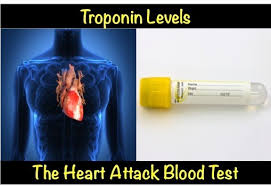 Troponin Levels Chart Troponin Levels The Heart Attack Blood Test Myheart Net