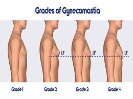 Gynecomastia Alert Dos And Donts Before Male Breast