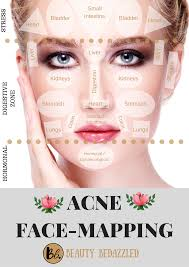 Acne Face Chart Acne Face Mapping What Does Your Acne Tell You Face