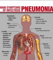 pneumonia symptoms causes and