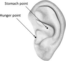 The Effects Of Auricular Acupuncture On Weight Reduction And Feeding