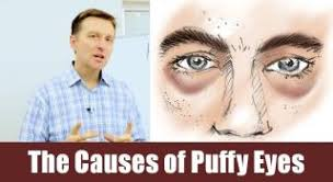 How to Reduce Puffy Eyes?   How To Reduce