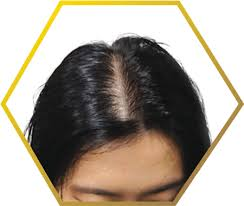Female Pattern Hair Loss Fascinating Female Pattern Baldness Hair Loss Causes Treatment