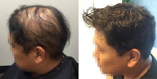 non surgical hair systems toronto on