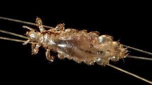 head lice symptoms treatment