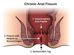 What is anal fissures