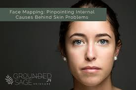 Skin Mapping Chart Pinpoint Internal Causes Of Problem