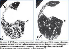 ОГК Пневмония Интерстициальные пневмонии Интерстициальные  Наиболее частым гистологическим паттерном является обычная интерстициальная пневмония uip синонимы муральная форма или смешанный фиброзновоспалительный