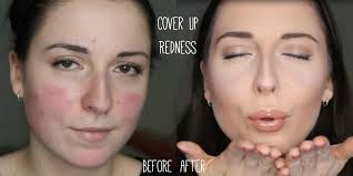 make up tutorial for rosacea party camouflage contouring make up you