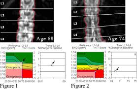 Bone Density Test Normal And Osteoporosis