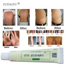 Hot selling ZUDAIFU Body Psoriasis Cream Skin Care Without Retail ...