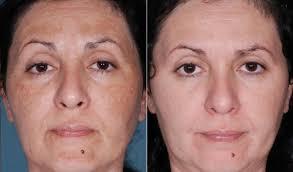 quanto custa fazer peeling no rosto