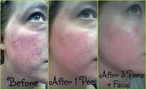 it works exfoliating peel before and after it works giveaway 2 by 22