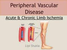 Image result for peripheral vascular disease