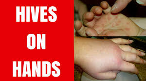 Hives on Hands - Hives on Hands Treatment - Hives on Hands Caused by ...