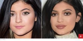 prijs lip fillers
