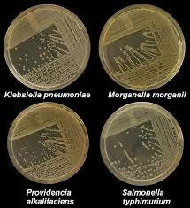 Petri Dish Bacteria Identification Chart Nutrient Agar Composition Preparation And Uses
