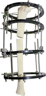 external fixator circular external fixator carbon fiber selaz
