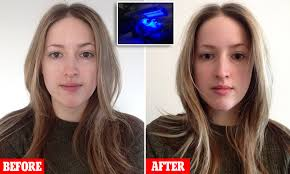 Blue Light Therapy Acne Results Led Treatment Using Skin Penetrating Wavelengths Of Light