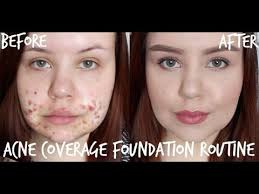 how to cover up acne 7 life saving tutorials thefashionspot