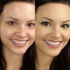 acne remover