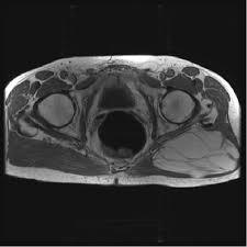 lipomas pathology orthobullets