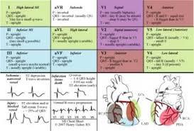 Pretty Ekg Chart Critical Care Nursing Nursing Students
