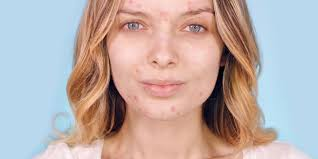 the latest insram beauty trend no filter shame free acne