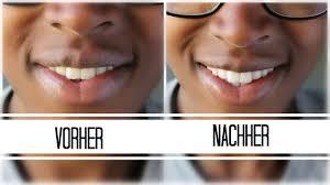 Welche ist die beste zahncreme