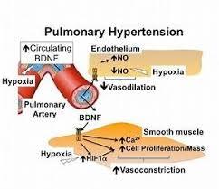 Hypertension Headache Location Chart Pin On Hypertension Symptoms