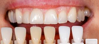 things you need to consider before getting dental veneers