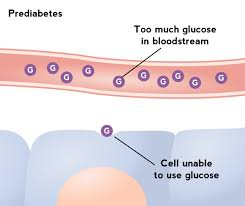 Diabetes Stages Chart The Stages Of Diabetes A Guide Food And Health Communications