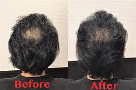 30代男性頭頂部の薄毛をカットで目立たなくする髪形のご紹介