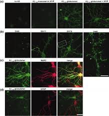 Globular amyloid β‐peptide1−42 oligomer − a homogenous and stable  neuropathological protein in Alzheimer's disease - Barghorn - 2005 -  Journal of Neurochemistry - Wiley Online Library