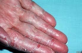 Itchy Skin (Pruritus) | India| PDF | PPT| Case Reports | Symptoms ...
