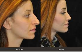 My recovery time was about three days with this since she had a deviated septum most of the cost was covered by insurance, she paid edit: Best Rhinoplasty Nose Surgery Beverly Hills Los Angeles West Hollywood Ca