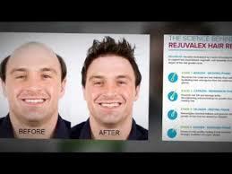 rejuvalex hair growth. Brilliant Rejuvalex Rejuvalex Hair Growth Reviews For O
