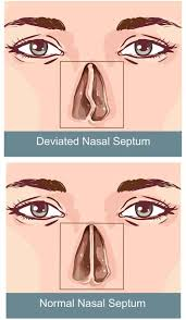 nasal septum deviation