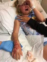 černá Henna Tattoo Způsobuje Chemické Popáleniny Na Malou Dívku